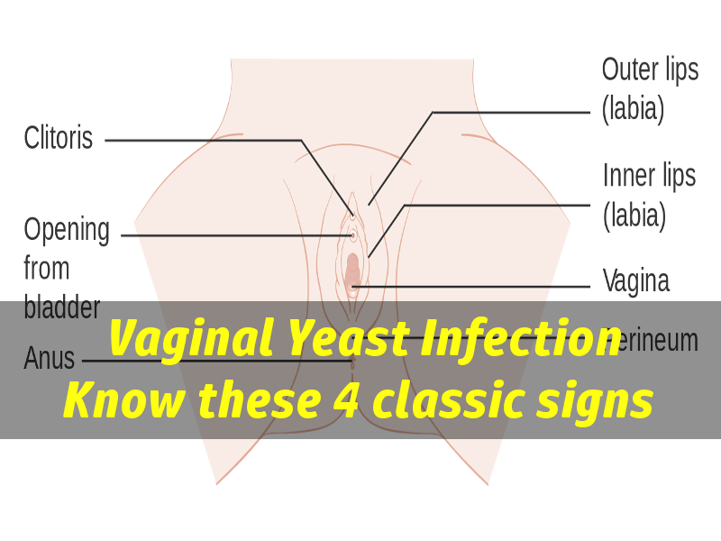 what does a yeast infection look like