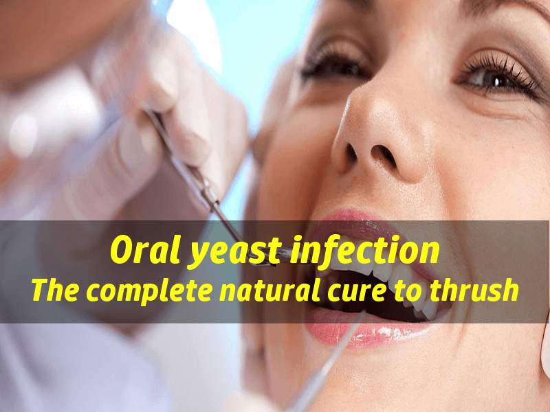 yeast infection in mouth